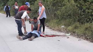 H7 honduras killed